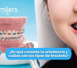 brackets ortodoncia mexicali tijuana ensenada los algodones