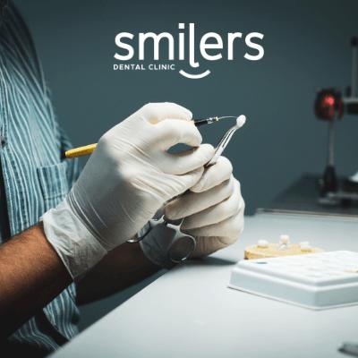materiales en las coronas dentales
