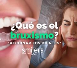 que es el bruxismo dentistas mexico tratamientos dentales mexicali tijuana algodones