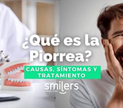 que es la piorrea dentistas mexico mexicali algodones