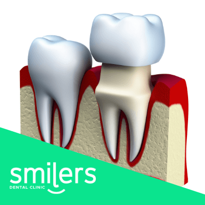 que son las coronas dentales