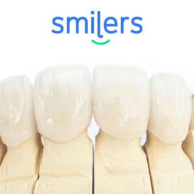 tipos de coronas dentales